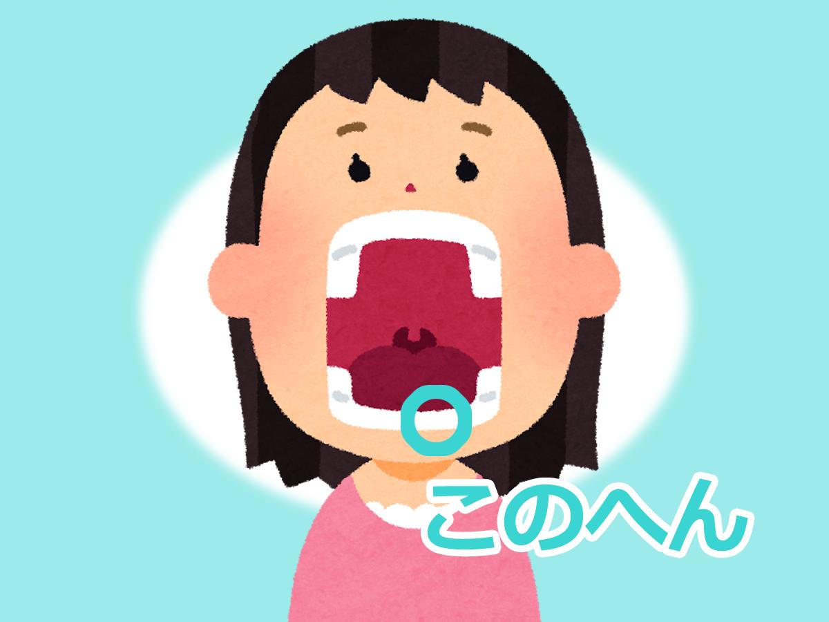 イラスト:歯の欠けた位置