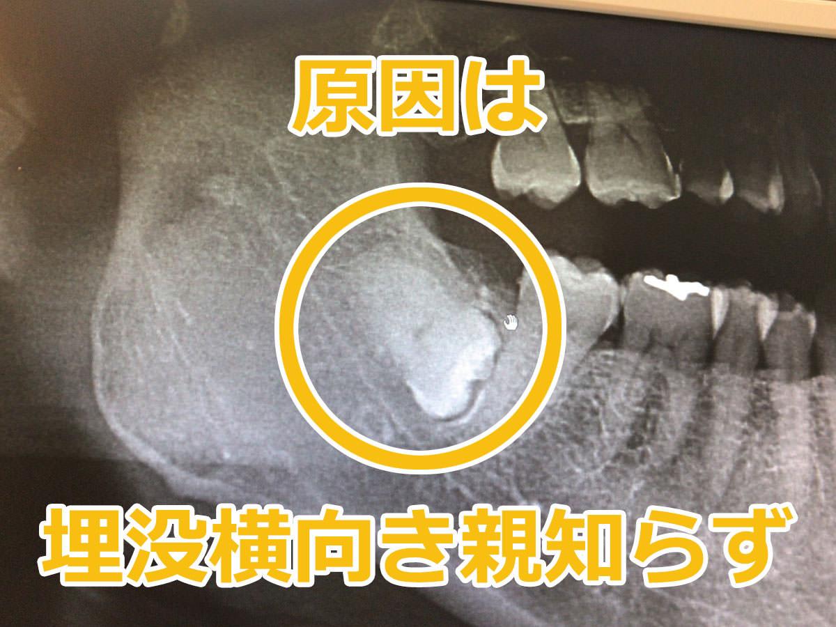 写真:歯のレントゲン 親知らず