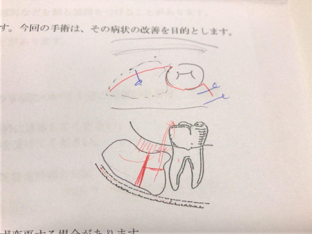 写真:手術の説明
