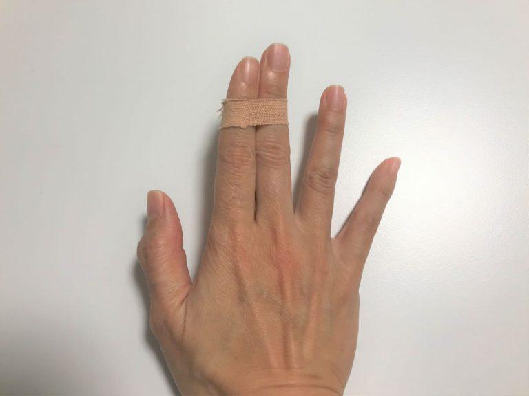 写真:中指をテーピングで固定中。封印された中指。