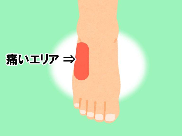 イラスト:右足の痛い部分